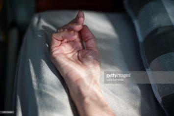 hand van een ernstig zieke vrouw